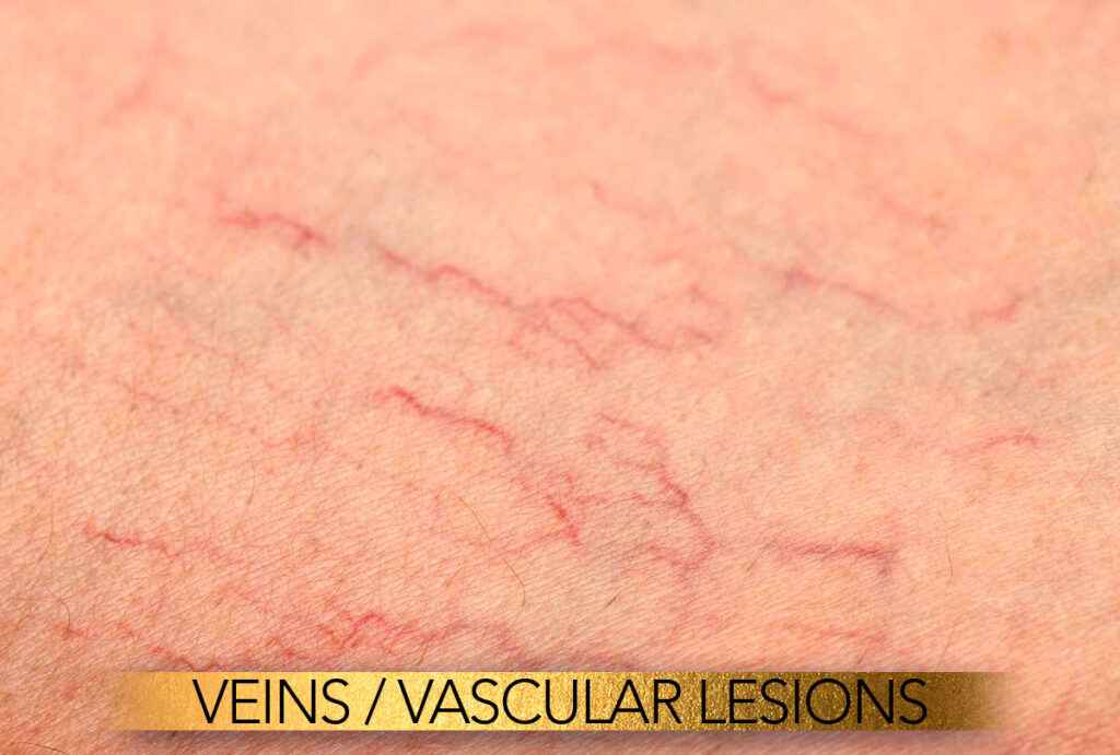 Veins and vascular lesion treatment