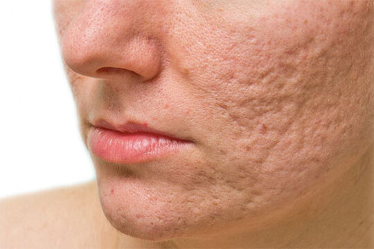 acne and acne scar revision brisbane skin clinic