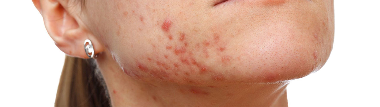 acne treatment brisbane