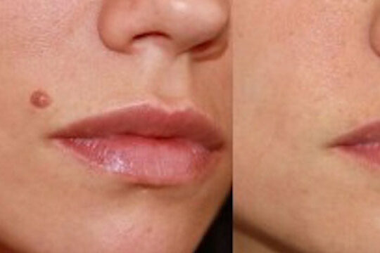 benign skin lesion and mole removal brisbane