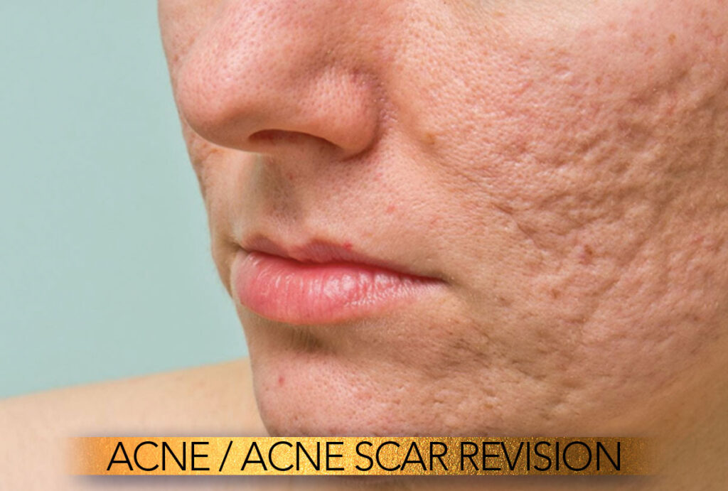 Acne and acne scar revision Brisbane
