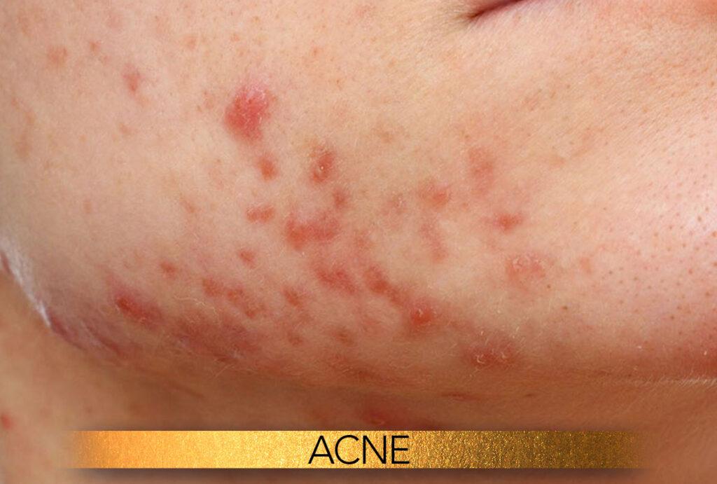 Acne treatments Brisbane