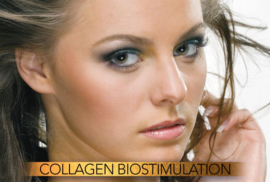 Collagen Biostimulation