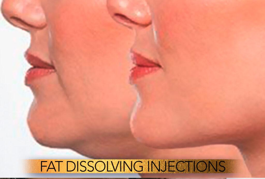Fat dissolving injections Brisbane