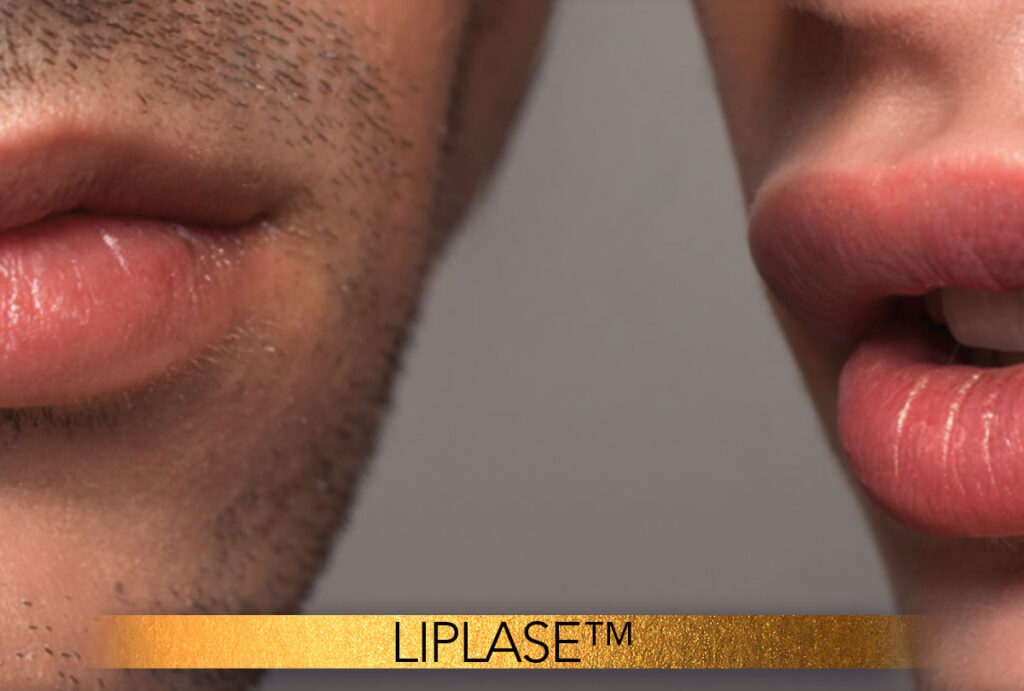 LipLase treatment Brisbane