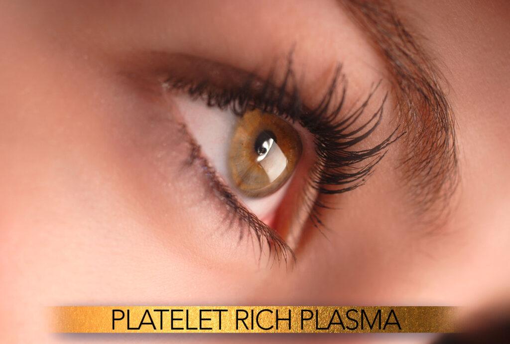 Platelet rich plasma (PRP)