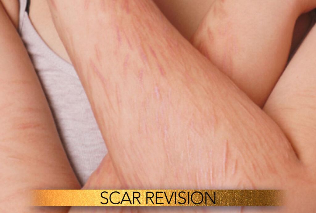 Scar revision in Brisbane