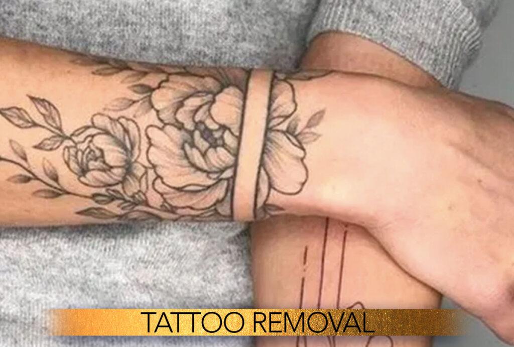 Tattoo removal clinic Brisbane