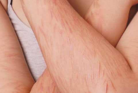 Scarring and Stretchmarks